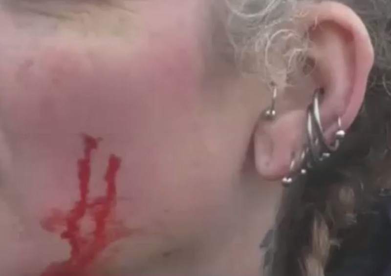 Blood on the Atherstone Hunt's protester's face